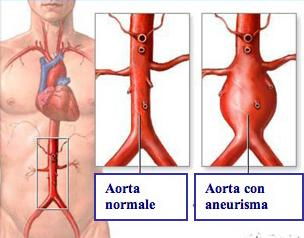Aneurismi dell'aorta addominale (AAA)