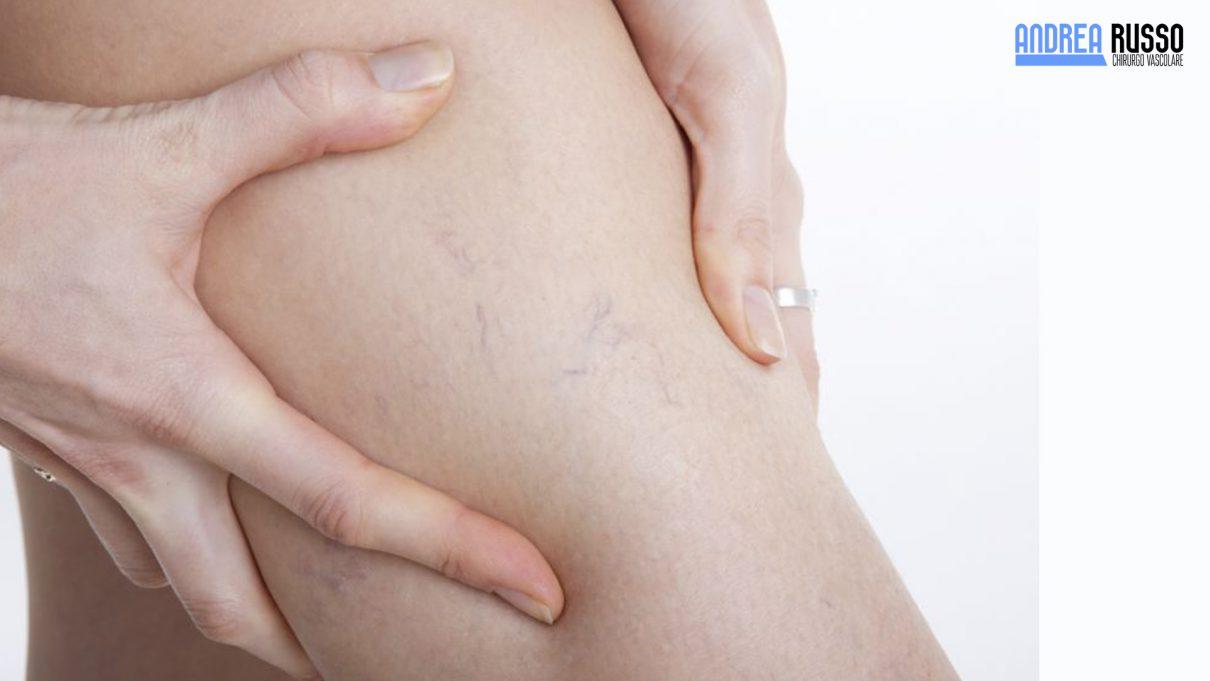 Quali esercizi possono esser fatti allatto di posizione di vene