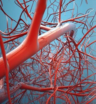 Trombosi di vene superficiali del trattamento di estremità superiore